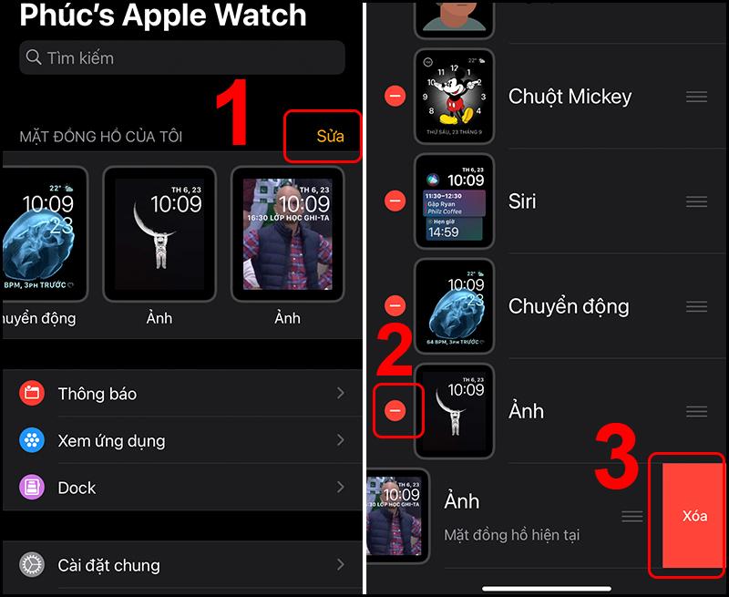 Xóa bớt mặt đồng hồ để Apple Watch gọn gàng hơn